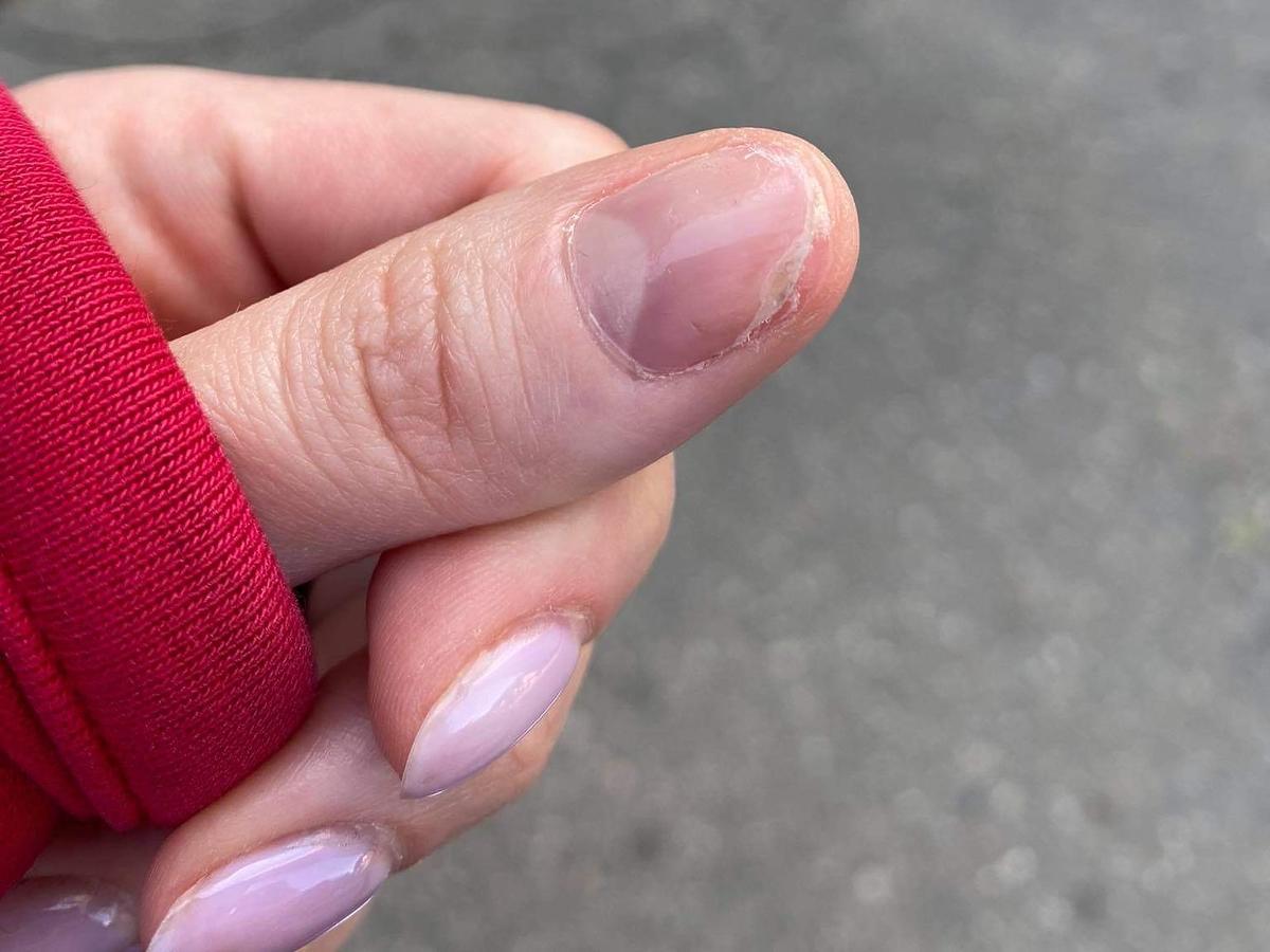 zniszczone paznokcie po hybrydzie